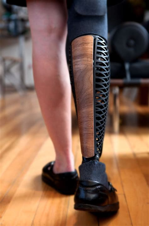 bespoke innovations makes beautiful custom prosthetic
