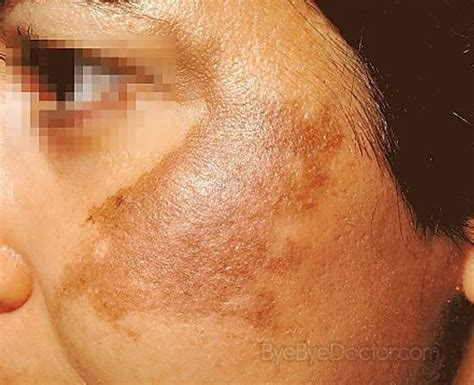 melasma treatment pictures causes symptoms cure