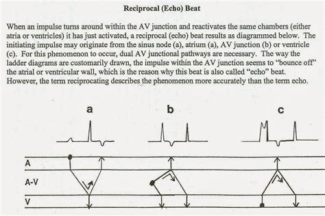 beat diagram dr smith s may 2011