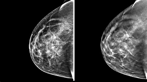 mammogram images 3 d mammography finds more tumors but questions remain