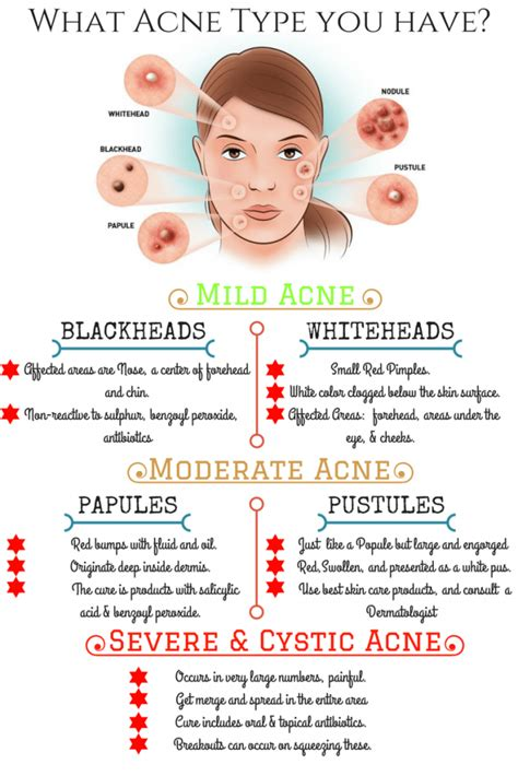 What Skin Type Do You by Acnevulgaris Acnetypes Read About Various Types Of Acne