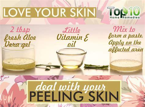 best skin peeling home remedies for peeling skin top 10 home remedies