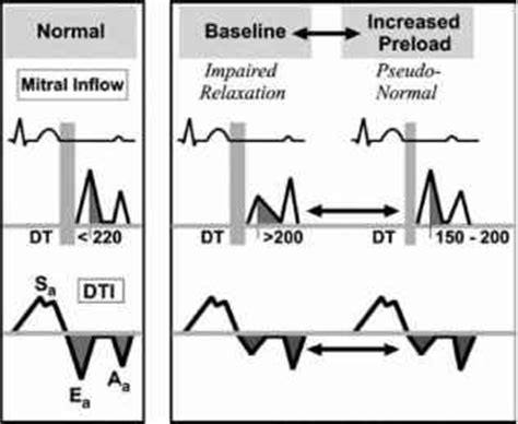 impaired relaxation pattern of lv diastolic filling treatment impaired relaxation echocardiography central lakes medical