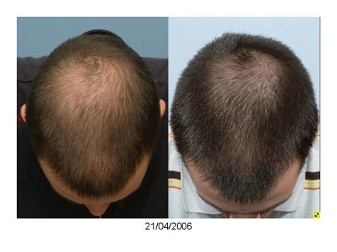 Shedding Finasteride by Finasteride Shedding 7 Months Buy Tretinoin Nz