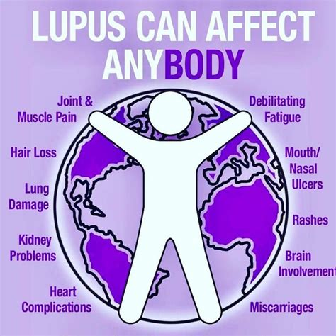 sle of will lupus symptoms are invisible although someone with lupus look like they are healthy these types