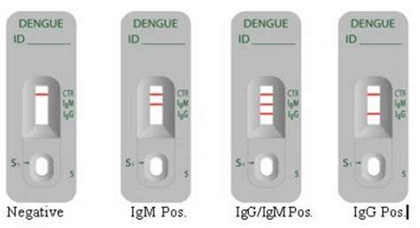 Dengue Igg Igm Rapid Test Orient laboratory diagnosis of dengue viral infection microbeonline