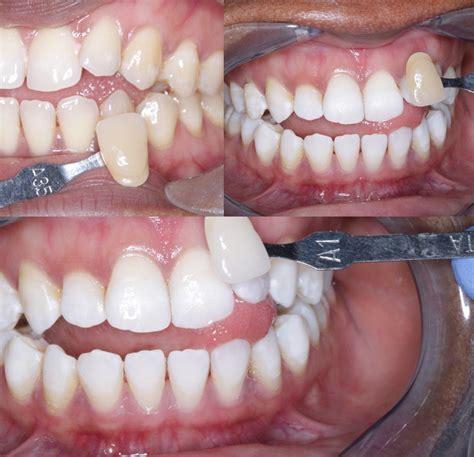 enlighten teeth whitening  penge south east london