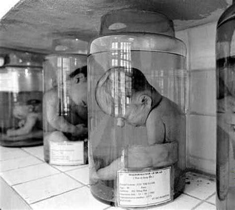 imagenes fuertes de vietnam consecuencias de la guerra qu 237 mica en vietnam fotos
