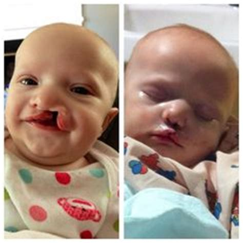 s new smile a baby with cleft lip and palate books 1000 images about oddities and curiosities on