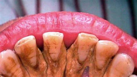 Membersihkan Karang Gigi Di Rumah Sakit Gigi Ku Bagus Biji Asam Kawak Hilangkan Karang Gigi