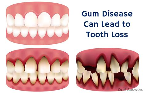 losing teeth periodontal disease not cavities is the leading cause of tooth loss answers