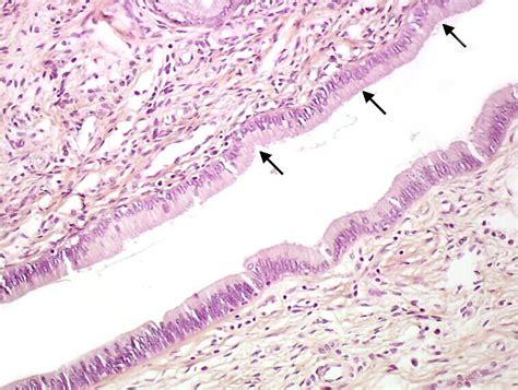 Arias Stella Reaction Pathology Outlines by Pathology Outlines Endocervical Glandular Atypia Dysplasia
