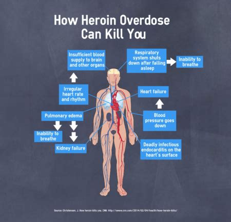 Can Detox Kill Someone by How Does Heroin Overdose Kill You Kill The Heroin