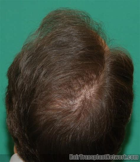 women balding on crown female pattern baldness medlineplus medical encyclopedia