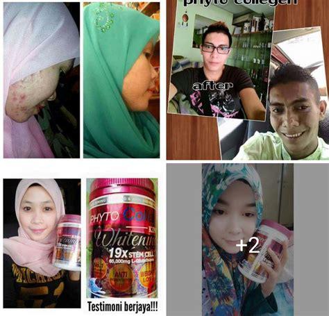 Laris Gluta Vire Original Vire Vitamin Harga Murah mahfuzah eshop borong retails murah 013 3045279 phyto collagen king of whitening 19x stem cell
