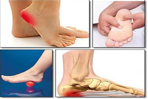 plantar fasciitis secrets revealed review how to treat