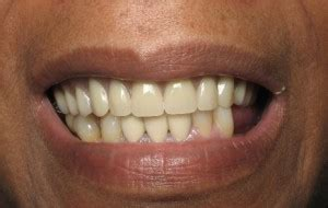 comfort dental southfield dental cosmetic face lift with dentures and crowns