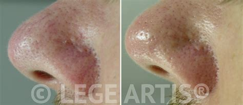 how to cure a red swollen nose rosacea support group image gallery nose redness treatment