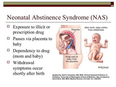 Birth Detox Symptoms by Intrauterine Exposure And Nas Newest10 17 14
