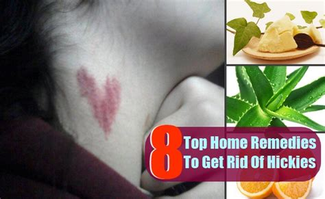 8 top home remedies to get rid of hickies search home remedy