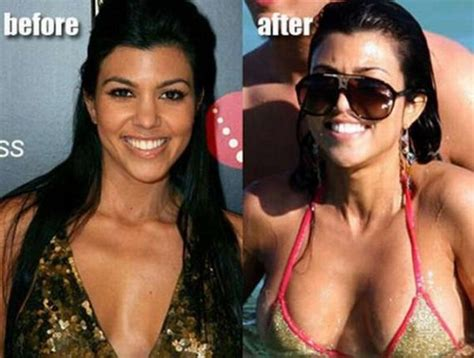 breast implants surgery all about celebrity breast doob picture celebrities before and after breast implants