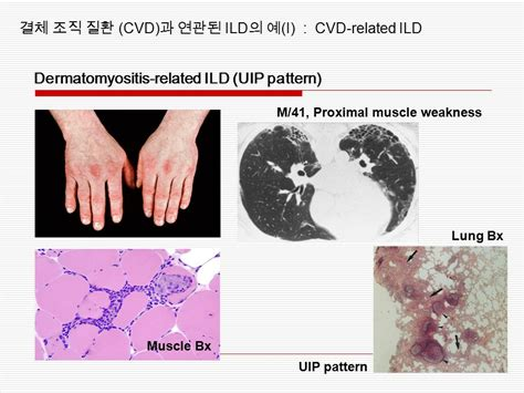 uip pattern radiographics interstitial lung disease ppt video online download