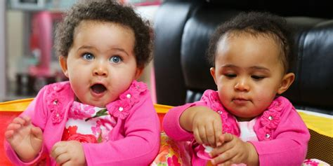biracial different color mixed race born with identical dna but different