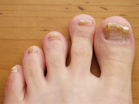infected toenail bed toenail fungus causes treatment and prevention health