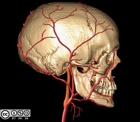 aneurisma carotide interna anatomie de la carotide externe