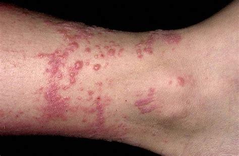 intossicazione alimentare sintomi sulla pelle dermatite allergica da contatto i sintomi e le cure pi 249