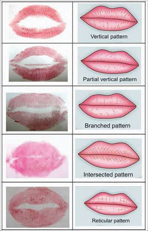 lip pattern types personal identification and sex determination using