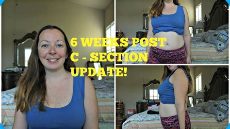 6 weeks post c section 6 weeks post c section update youtube