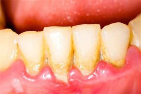 Membersihkan Karang Gigi Puskesmas Cara Membersihkan Karang Gigi Dengan Alami Dan Cepat