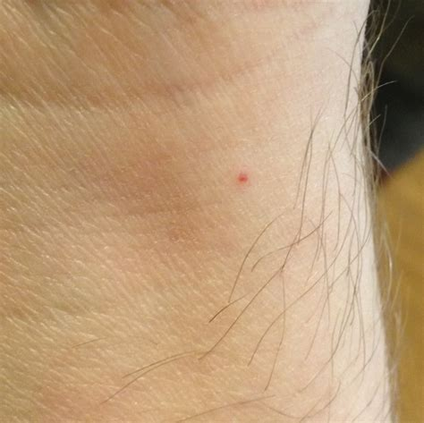 bed bug bites photo why do bed bugs bite my spouse and not me