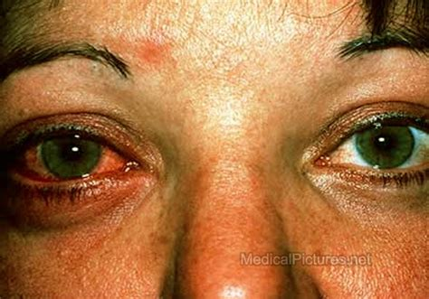 pink eye images conjunctivitis pictures
