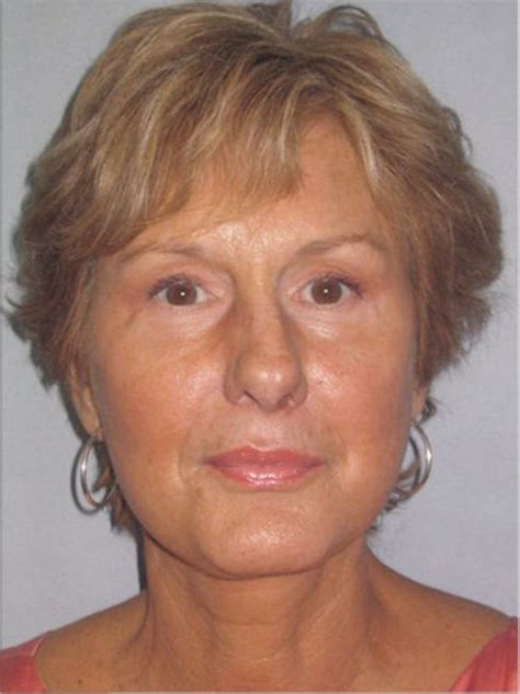 sixty year old face endoscopic brow lift upper and lower eyelid lift and a