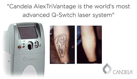 tattoo removal sydney cbd 100 removal sydney laser amazing