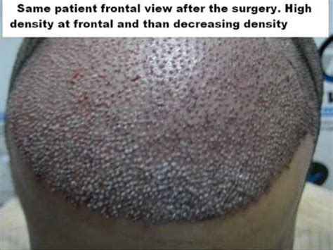 hair transplant india delhi mumbai youtube hair transplant fue mumbai kolkat m p h p india