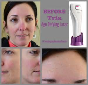 how well does tria age defying laser work on deep acne scars tria age defying laser before and after pictures