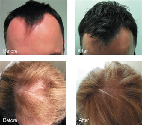 laser light therapy for hair loss reviews laser treatment for hair loss epilight skin clinic