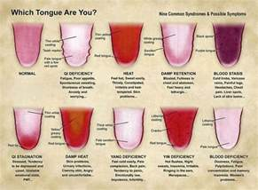 normal tongue color what is your tongue telling you about your health