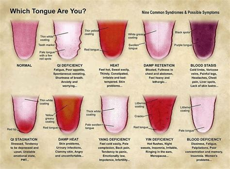 what is your tongue telling you about your health