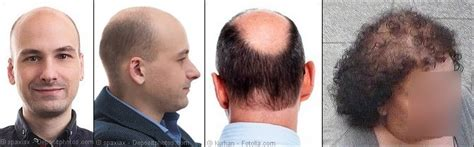 male hair loss pattern due to stress skull expansion theory for hair loss by paul taylor