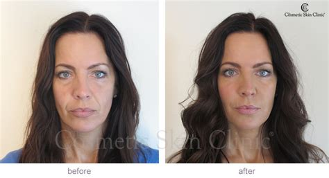 radiesse for jowls glendale and malibu filler for jowls before and after short hairstyle 2013