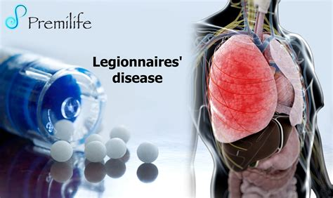 legionnaires disease i legionnaires disease premilife homeopathic remedies