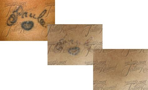 tattoo removal cream yahoo 20 laser tattoo removal before and after male models picture