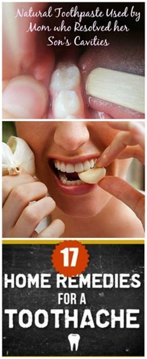 25 best ideas about toothache remedy on