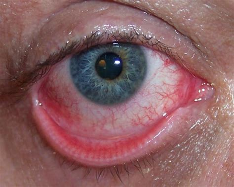 eye drops conjunctivitis contagious conjunctivitis