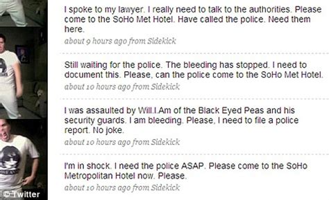 Update Perez My Nutrionist Would Like To Speak With You by Perez Claims He Was Beaten Up By Black Eyed Peas
