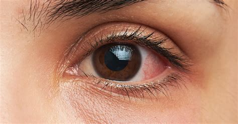 eye infection eye infections what should you do